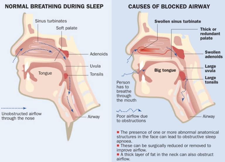 Snoring is a sound generated
